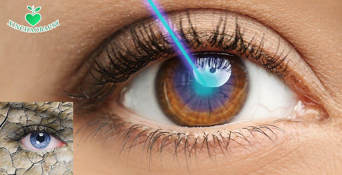 Khô mắt sau phẫu thuật lasik – Biến chứng phổ biến không thể chủ quan